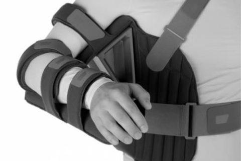 Один из вариантов современных ортезов, применяемых после переломов плеча