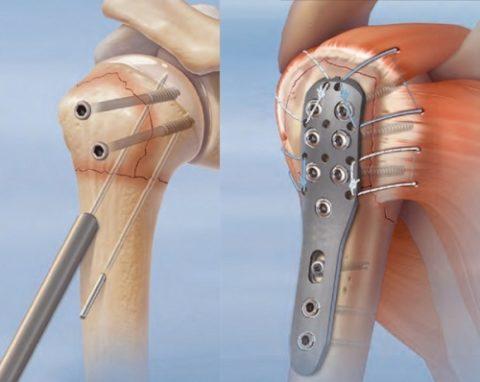 Особенности процедуры остеосинтеза плечевого сустава
