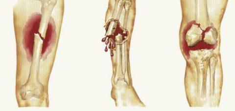 Открытый и закрытый перелом кости