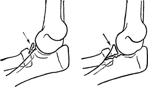 Отрыв Лучевого отростка локтевой кости