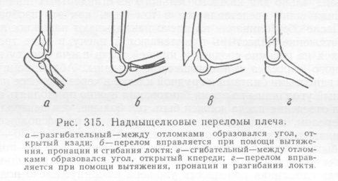 Отрыв надмыщелка плечевой кости