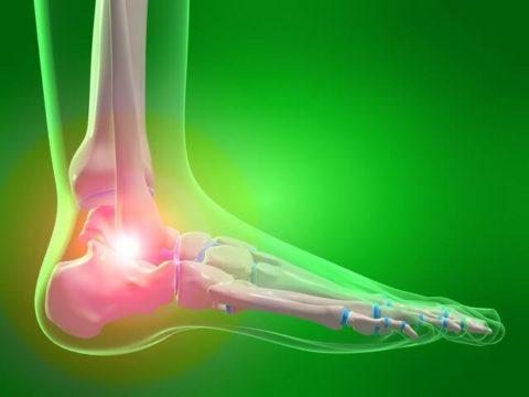 Перелом костей стопы со смещением