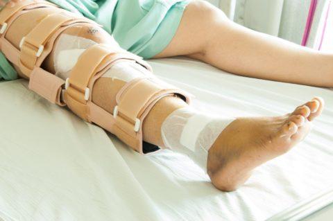 Перелом кости голени — частая травма.