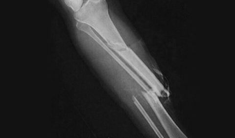 Перелом кости голени