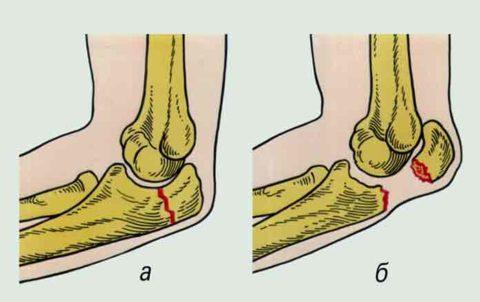 Перелом локтевого отростка: а – без смещения, б – с отрывом сегмента