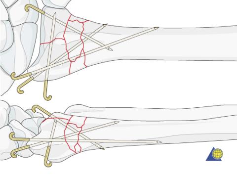 Перелом лучевой кости зафиксирован спицами