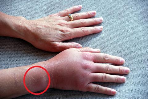 Перелом нижней части локтевой кости (красный овал) повлёк обширную отёчность кисти