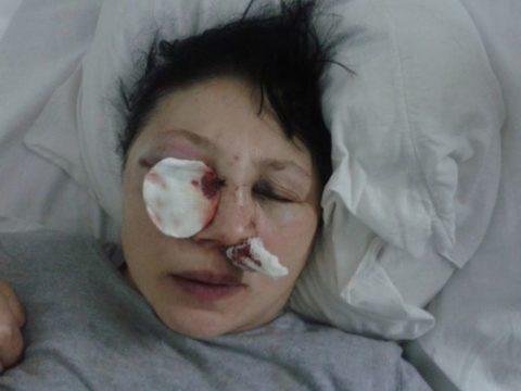 Перелом носа с осколками