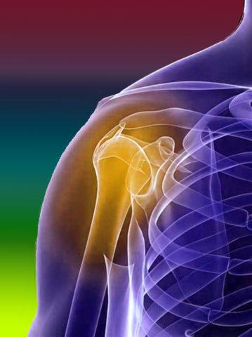 Перелом плеча считается тяжелой травмой