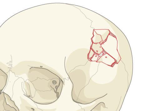 Перелом свода черепа