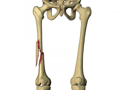 Перелом тела бедренной кости