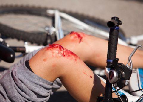 Переломы могут возникнуть при занятиях активным спортом