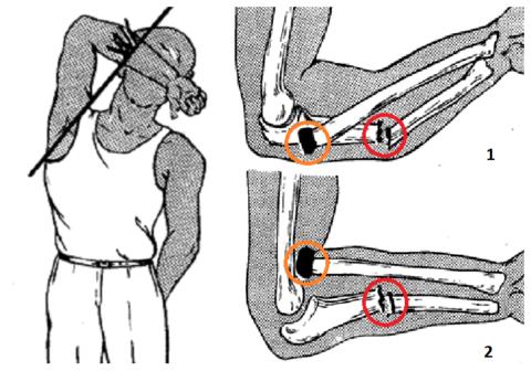 Переломы Монтеджи: 1 – при отражении удара, 2 – во время пассивной защиты от удара
