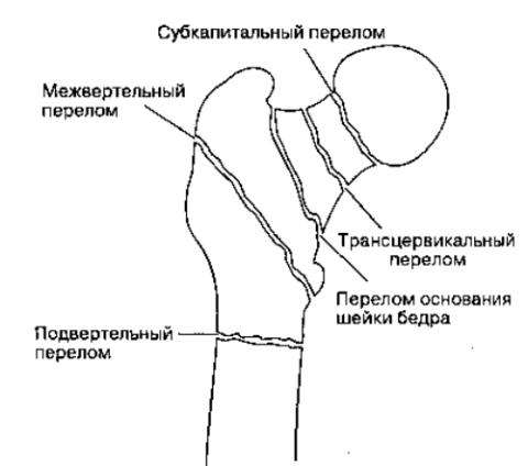 Переломы шейки бедренной кости отличаются по своему местоположению.