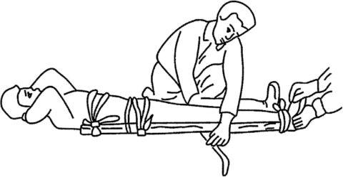 Подготовка к транспортировке пациента с переломом.