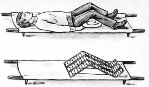 Положение при переломе таза