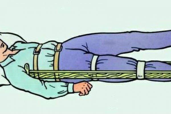какие суставы должна фиксировать шина при переломе
