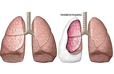 Правосторонний пневмоторакс