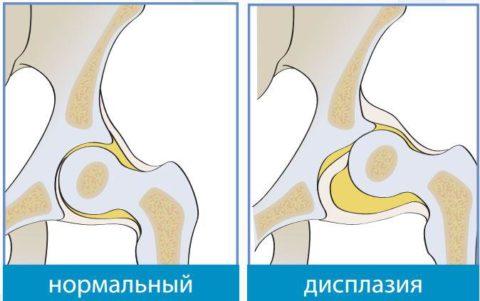 При диспластических нарушениях в суставах могут возникать переломы.