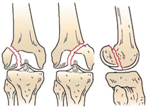При дистальных переломах повреждается нижняя часть бедра.