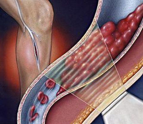 При долгом лежании застойные явления также происходят и в сосудах нижних конечностей, что приводит к тромбообразованию.