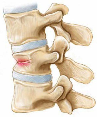 При компрессионном переломе уменьшается высота позвонка