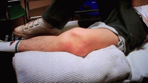 При мыщелковых переломах нижней части бедра наблюдаются сильные боль, отек, изменение цвета кожных покровов в поврежденной области.