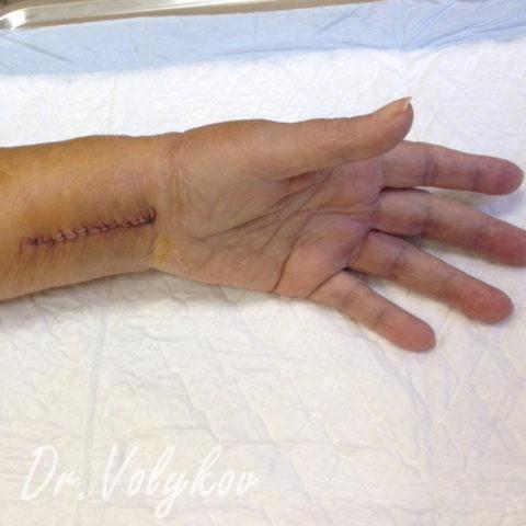 При открытом переломе травмируется кожный покров.