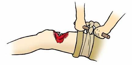 При открытом при переломе, шейки бедра или бедренной кости, обычно производят оперативное вмешательство.