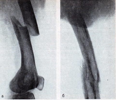 При переломах бедренной кости может происходить смещение отломков относительно друг друга.