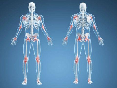 При прогрессирующих заболеваниях опорно-двигательного аппарата могут возникать различные переломы, в том числе и сочленений.