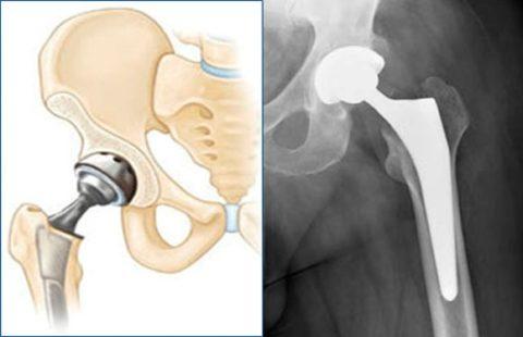 При тотальном эндопротезировании производится полная замена травмированного сочленения.
