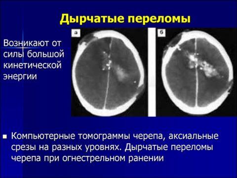 Пример дырчатого перелома