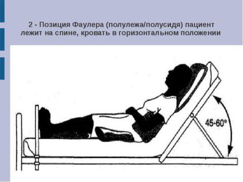 Примерное положение - полусидя с валиком под коленями