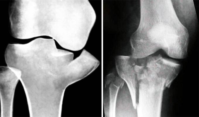 фото межмыщелковый перелом коленного сустава