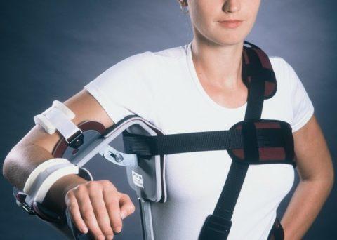 Проведение эндопротезирования плечевого сустава