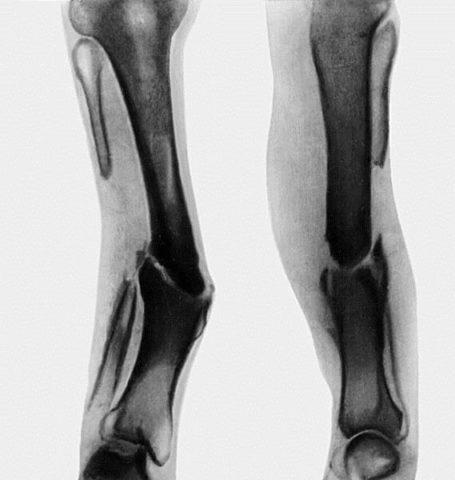 Проявление остеоартроза.