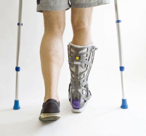 Реабилитация после перелома голеностопного сустава
