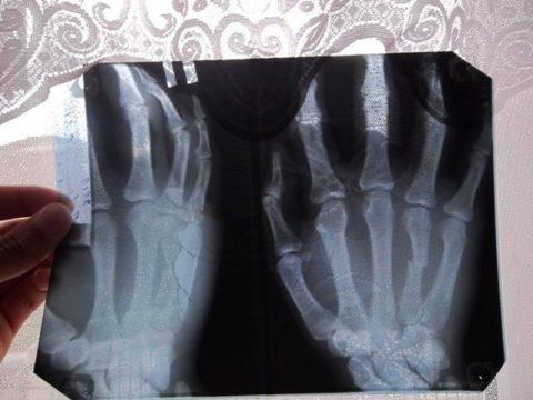 Рентгенография – наиболее распространенный и доступный метод диагностики.