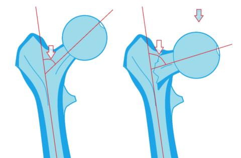 Шеечно-диафизарный угол (слева – норма, справа – при базицервикальном переломе)