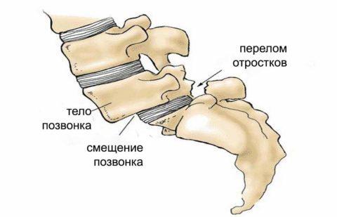 Схематическое изображение спондилелистеза
