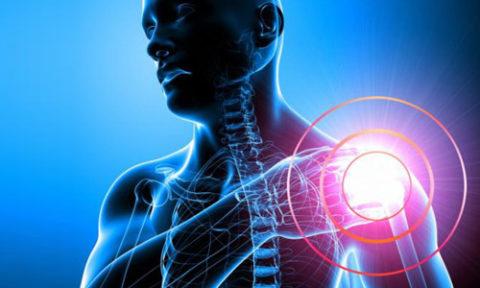 Симптомы переломов плечевой кости