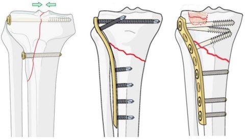 Синтез перелома голени и коленного сустава пластиной