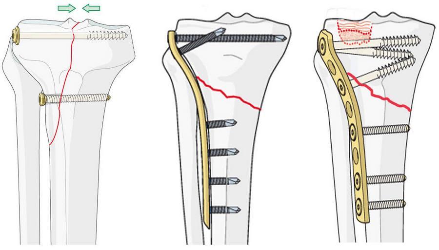 Операция с пластиной при переломе голени со смещением: реабилитация