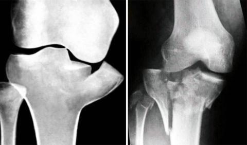 Сломанный мыщелок большеберцовой кости