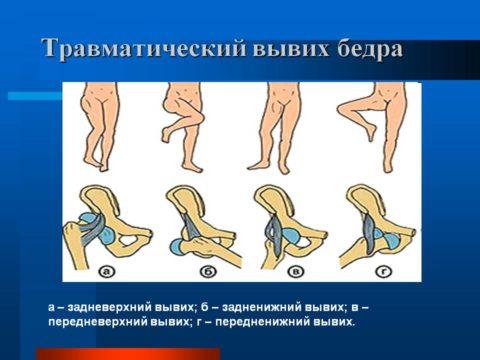 Существует несколько видов травматического вывиха бедра.