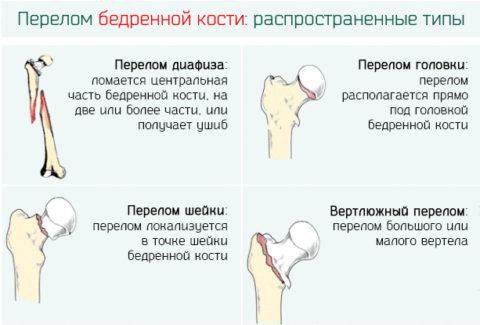 Существует определенная классификация переломов бедренной кости.