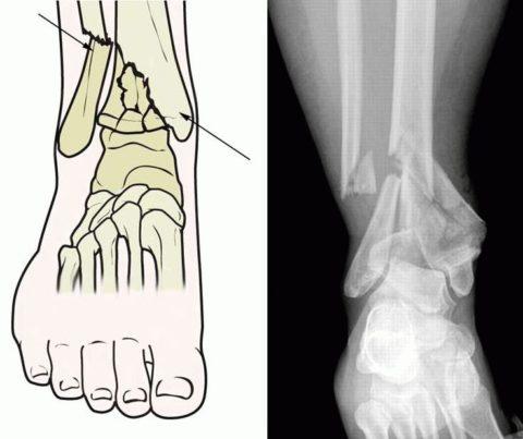 Травма голени с повреждением костей