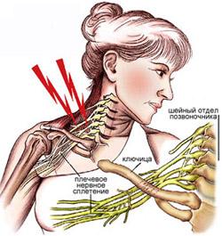 Травма плечевого сплетения