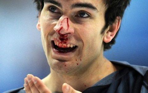 Травмы носа